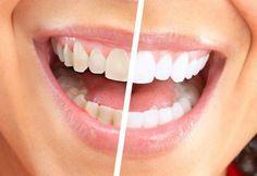 Die Vorteile von Bananen selbst sind bekannt. Doch die starken Eigenschaften ihrer Schale werden oft unterschätzt. Die gelbe Hülle wird oft entsorgt, ohne ein zweites Mal darüber nachzudenken. Doch das ist falsch. Die Schale enthält einige nützliche Eigenschaften, die du dir umbedingt zu Nutzen machen solltest. 1. Weisse Zähne Reib deine Zähne zwei Wochen lang