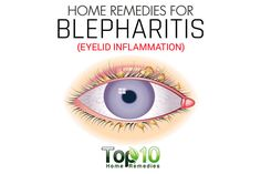 Blepharitis: Tips and Remedies to Relieve Eyelid Inflammation Dry Eyes Causes, Top 10 Home Remedies, Natural Remedies, Eye Infections, Healthy Eyes, Eyes Problems, Cool Eyes, Beauty Tutorials, Health Tips