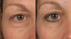 Active FX Laser for Eye Wrinkles