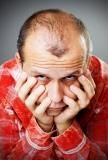 Male hair loss    http://www.hair-palace.co.uk/how-much-do-hair-transplants-costs/