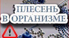 Наши глаза связаны с состоянием печени.Метод Огулова А.Т. www.ogulov-ural.ru 2/21 - YouTube