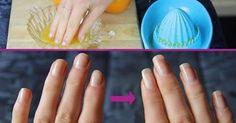 Consigli e trattamento all'olio d'oliva per rendere più forti le unghie