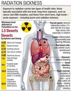 Medical Addicts: Acute radiation syndrome (ARS), also known as radiation poisoning, radiation sickness or radiation toxicity Radiation Therapist, Radiologic Technology, Radiation Exposure, Nuclear Medicine, Nuclear Disasters, Emergency Medicine, Survival Skills, Survival Gear, Chernobyl