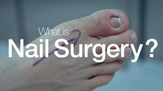 Do you know what an ingrowing toenail is?  It's a very common condition that affects young and old. Learn a bit more with this video.