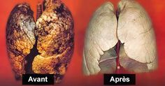 Comment purifier vos poumons en 72 heures -