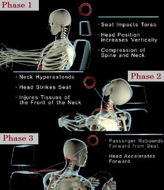 Auto injury whiplash- an overview Care and treatment at http://jacksonvillechiropractic.org/