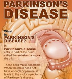 Amphetamine Use Likely to Increase Parkinson's Disease Risk