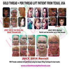 thread lift mini facelift thailand