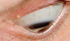 imagenes de ojos con queratocono - Buscar con Google