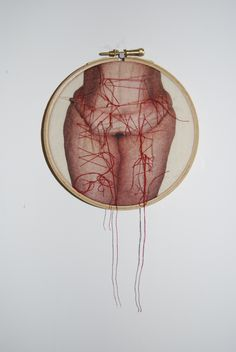 © Rebecca Harris, 2013, photo printed onto calico and manipulated with stitching – work in progress for obesity project