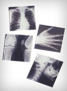 X-Ray coasters...also check out the link for this...pretty cool ideas for science geeks like myself