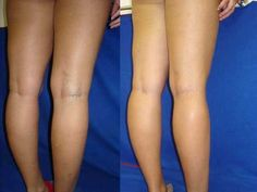 How to eliminate the varicose veins forever! - Healt World Arnica Montana, Low Heel Shoes, Low Heels, Varicose Veins Causes, Leg Pain, Stars Then And Now, Health Articles, Hollywood Stars, Health And Beauty