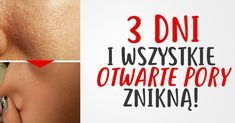 3 dni i problem z otwartymi porami zniknie Face Yoga, Les Rides, Good To Know, Health And Beauty, Life Hacks, Hair Beauty, How To Make, Fitness, Wax