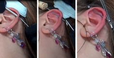 Industrial Piercing #piercing #bodymodification #industrial #scaffold #pain