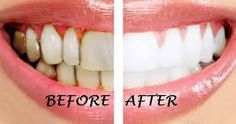 Whitening your teeth by more than 1 ways. Brush your teeth with coconut oil,. - Whitening your teeth by more than 1 ways. Brush your teeth with coconut oil, OIL PULLING, ( - Teeth Whitening That Works, Whitening Skin Care, Teeth Whitening Remedies, Teeth Whitening System, Natural Teeth Whitening, Baking Soda Teeth, Gum Disease Treatment, Baking With Coconut Oil, Tooth Sensitivity