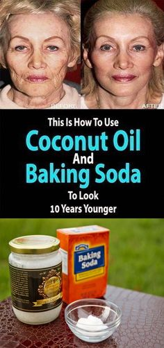 How To Use Coconut Essential oil And Baking Soda To Look 10 Years Younger – Oily Skin Care Cleanser For Sensitive Skin, Natural Facial Cleanser, Oily Skin Care, Be Natural, Natural Face, Natural Skin Care, Natural Beauty, Coconut Essential Oil, Coconut Oil