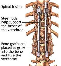 Surgical Tx for scoliosis- Harrington Rod, performed with severe curvature or failure of the brace. Rod insertion and spinal fusion, fuses and realigns spine. 10-14 days postop, sutures removed and cast is applied for 6mo--1yr. Client should remain flat, logroll only until cast is applied.
