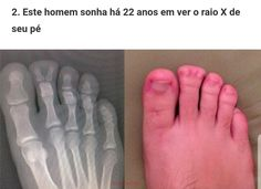 "Que q tá acontecendo ? Meu Deus mano ,os gringo tão puto corre ""This man dreamed for 22 years to see the x ray of his foot"" Stupid Funny Memes, Funny Posts, Creepy Animals, Tokyo Ghoul Wallpapers, Wtf Moments, Laughing And Crying, Memes Br, Funny Animal Pictures, Haha"
