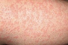 48 Best Heat Rash images in 2014 | Back rash, Cure for heat