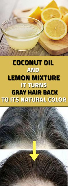 A Coconut Oil And Lemon Mixture Can Prevent Gray Hair hair remedies Natural Cures, Natural Healing, Natural Oil, Prevent Grey Hair, Coconut Oil Hair Mask, Coconut Shampoo, Regrow Hair, Hair Starting, Organic Coconut Oil