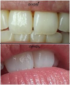 Blanchiment des dents Pure Beauty, Diy Beauty, Beauty Hacks, Perfect Beard, Beard Care, Hair And Beard Styles, Beauty Essentials, Teeth Whitening, Beauty Secrets
