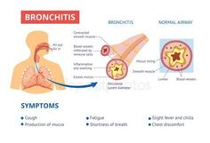 airway and bronchitis diagnosis symptoms medical banner vector illustrat ,Healthy airway and bronchitis diagnosis symptoms medical banner vector illustrat , Shortness Of Breath, Banner Vector, Health Care, Medical, Healthy, Illustration, Store, Medicine, Larger