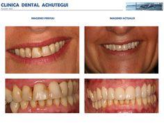 Tratamiento #Periodontal básico y #Carillas o Facetas de Porcelana. Clínica Dental Achútegui Avda. de Madrid 32, Bajo - 20011 Donostia - San Sebastián 943 46 32 15 - 619 365 785 www.achuteguidental.com contacto@achuteguidental.com