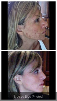 """Real People, Real Results! """"I have been using Rodan + Fields products for three months and cannot believe the positive changes in my skin! I use the UNBLEMISH Regimen in the morning and evening. I also use the REDEFINE Macro Exfoliator tool once a week. No more layering makeup before leaving the house! Love your skin!!! www.chandariley.myrandf.com"""