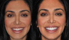 I Bleached My Teeth! Zoom Whitening, My Experience! I Bleached My Teeth! Zoom Whitening, My Experience! Zoom Whitening, Teeth Whitening Methods, Teeth Whitening That Works, Natural Teeth Whitening, Eczema Around Eyes, Beauty Hacks Skincare, Beauty Tips, Teeth Implants, Cosmetic Dentistry