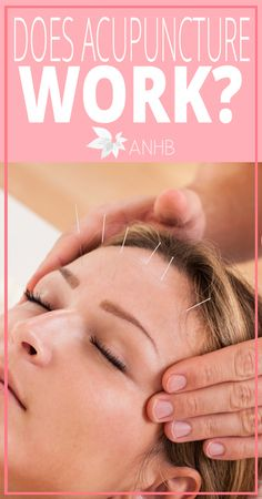 Does Acupuncture Work - All Natural Home and Beauty