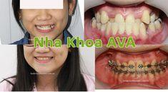 Niềng răng mọc lệch là một trong những ca chỉnh nha phổ biến ở nhiều mức độ nặng – nhẹ khác nhau. Khi có ý định chỉnh sửa răng  mọc lệch lạc, các bạn nhất định phải lưu ý 3 điều quan trọng dưới đây. Septum, Halloween Face Makeup, Ava, Aperture, Nose Rings