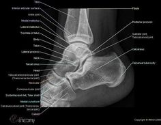 Radioanatomy of the ankle : radiology of the ankle (lateral view) with anatomical structures labeled as calcaneus, talus, navicular, talo-crural joint. Radiology Schools, Radiology Student, Radiology Imaging, Medical Imaging, Ankle Anatomy, Anatomy Bones, Human Anatomy, Foot Anatomy, Skull Anatomy