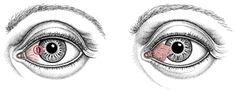 Pinguecula and Pterygium - Eye Disorders - Merck Manuals Consumer Version Nursing Iv, Merck Manual, Laser Eye Surgery, Radiation Exposure, Ultra Violet, Disorders, Eyes, Eye Doctor