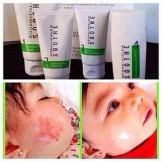 I love the way Soothe helps baby faces!!