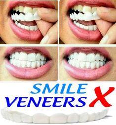 25 Best false teeth images in 2019 | Veneers teeth, Cosmetic