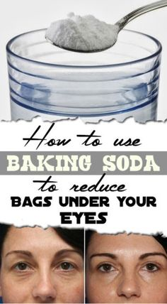 how-to-use-baking-soda-to-reduce-bags-under-your-eyes
