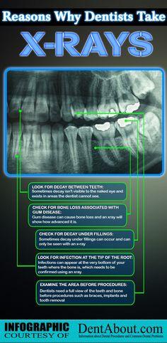 Crossroads Dental Arts offers general dentistry and cosmetic dentistry services. We provide the best quality dental care for our patients. Dental Hygiene School, Dental Humor, Dental Hygienist, Dental Implants, Dental Assistant Study, Dental Surgery, Dental World, Dental Life, Dental Health