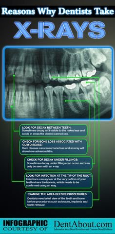 Reasons why dentists take x-rays:  Look for decay between teeth: Sometimes decay isn't visible to the naked eye and exists in areas the dentist cannot see.   Check for bone loss associated with gum disease: Gum disease can cause bone loss and an x-ray will show how advanced it is.  Check for decay under fillings: Sometimes decay under fillings can occur and can only be seen with an x-ray.