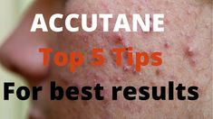 For tips on having acne free skin Accutane – 5 Tips by Dermatologists Accutane or Roaccutane is a tablet is also known as isotretinoin and is a form of vitamin Acne Face Wash, Acne Skin, Acne Prone Skin, Chin Acne Treatment, Accutane Before And After, Natural Acne Remedies, How To Treat Acne, Skin Firming