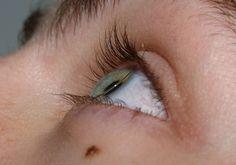Lente de contato rígida sobre a córnea