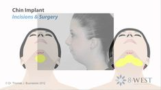 Part 2/13: Neck Liposuction & Chin Implant | Face & Neck Reshaping Surge...