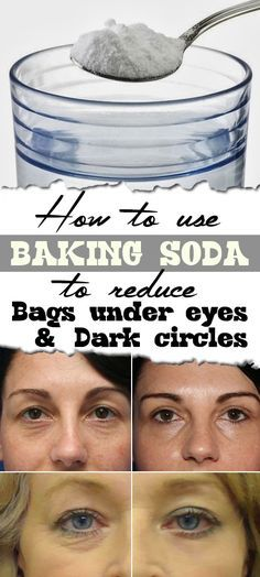 use baking soda to reduce dark circles and bags under your eyes 2 tsp baking soda, hot water or chamomile tea, 2 cotton balls under eyes 15 minutes daily until gone.