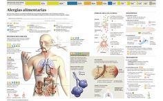 Alergias alimentarias | Clínica Universidad de Navarra