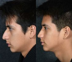 Cosmetic Surgery procedures including the rhinoplasty are more common for British Asian men than you might suspect. Surgery procedures including the rhinoplasty are more common for British Asian men than you might suspect. Nose Plastic Surgery, Nose Surgery, Rhinoplasty Surgery, British Asian, British Men, Male Makeup, Asian Makeup, Face Transformation, Rhinoplasty Before And After