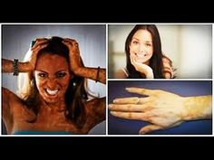 05 Natural Home Remedies for Vitiligo Disease Treatment Quickly How To R...