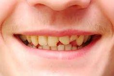 #bestdentalcareinJalandhar #topdentalclinicsinpunjab#teethwhiteningpunjab #topdentalclinicsinjalandhar#dentaltourismwinnipeg #dentaltreatmentindia #dentistservicesjalandhar#dentalcareindia www.drguptasdentalcareindia.com Cont:91-9023444802