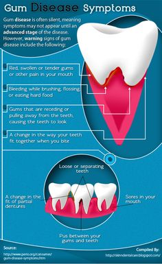 Symptoms of Gum Diseases [Infographic] If you're experiencing any of these, call #Brighton #UKDental Today!