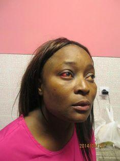 Angolana alega ter sido atingida com choque eléctrico, brutalmente espancada e pisada por Policia em Portugal  http://angorussia.com/?p=17969