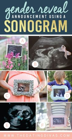 Gender-Reveal-Announcement-Using-a-Sonogram