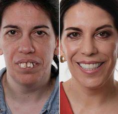 Teeny-tiny Dental Bridge Other Dental Veneers, Dental Braces, Dental Implants, Teeth Health, Oral Health, Teeth Whitening Cost, Dental Costs, Dental Bridge Cost, Dental Videos